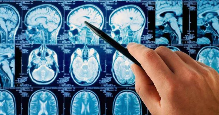 can-cell-phones-cause-brain-cancer-we-asked-the-experts-1200x0