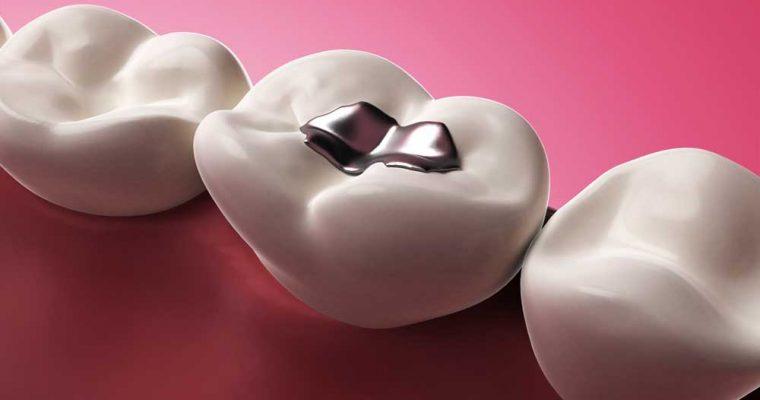 داروی الزایمر به جای پوسیدگی دندان