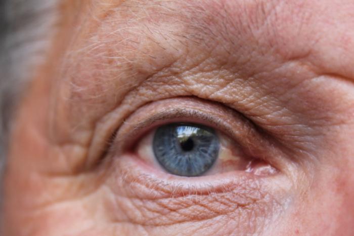 senior-eye