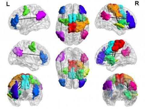 تحقیق شواهدی دارد که نشان میدهد در پسران بزرگسالی که اختلال بازی اینترنتی دارد، نواحی بسیاری از مغز دارای اتصالات بیش از حد است. (مناطق رنگی نشان دهنده شبکه های خاص مغز است) بعضی از تغییرات ممکن است به افراد در پاسخ به اطلاعات جدید را کمک کند و بعضی دیگر منجر به حواس پرتی و اختلال کنترل تکانه میشود.