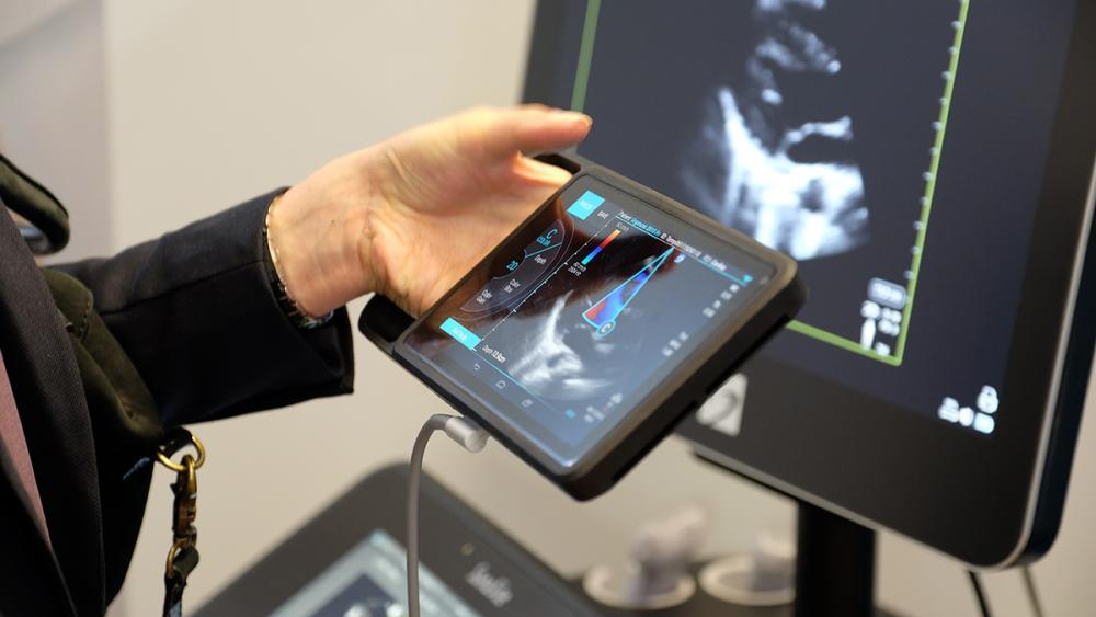 iVIZ سونوسایت جدید، اولتراساوند قابل حمل، روانه بازار اروپا شد