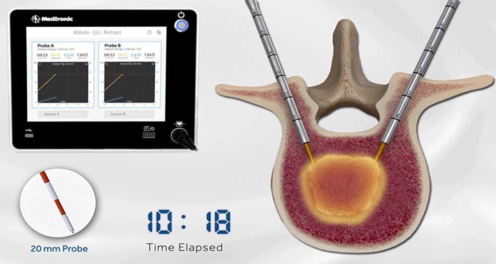 OsteoCool RF سیستم رفع تومور نخاعی جدید