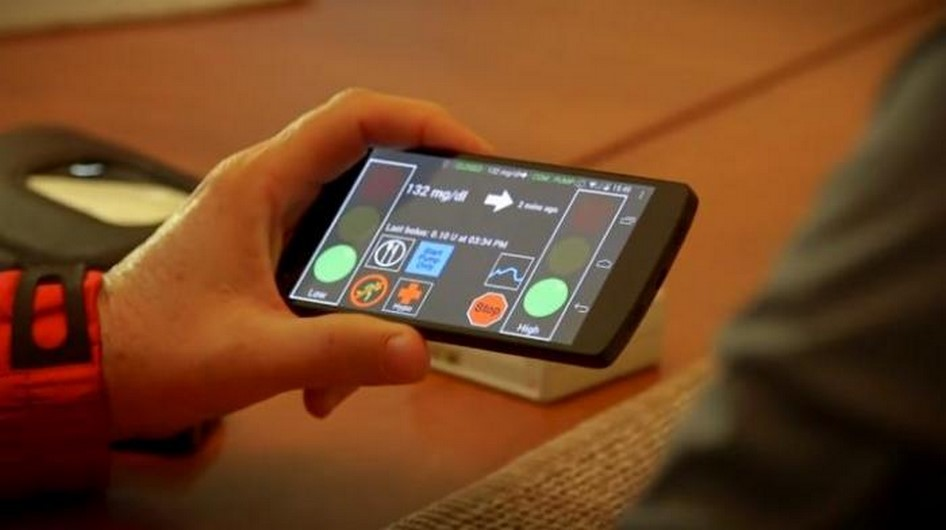 پانکراس مصنوعی؛ تکنولوژی هوشمند در خدمت بیماران دیابتی
