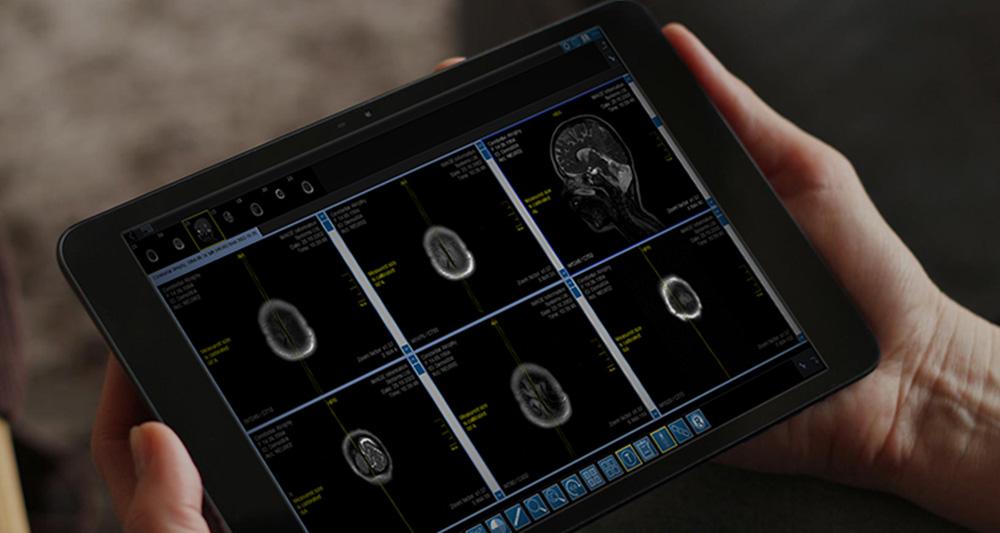 Med-Tab اولین تبلت قابلحمل برای نمایش تصاویر پزشکی