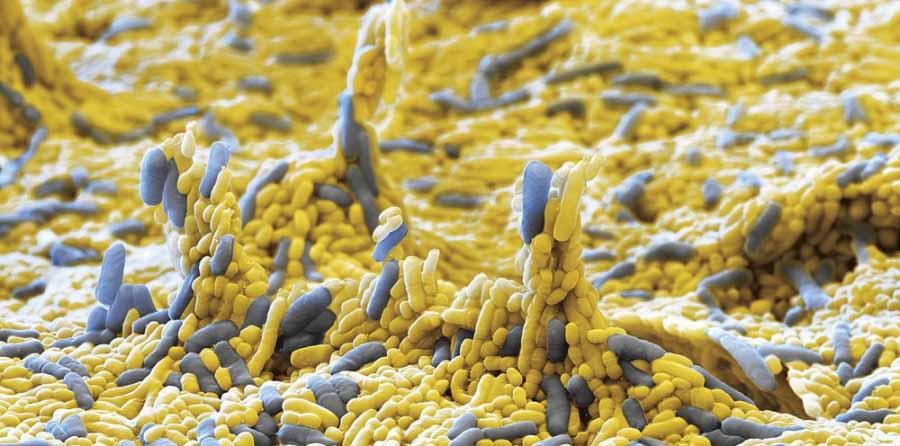 گونه جدیدی از میکروب ها شناسایی شدند