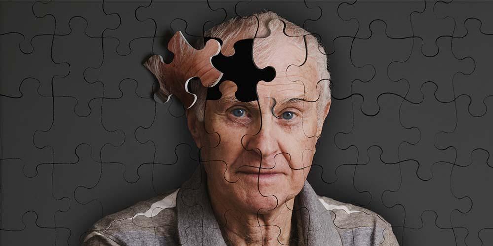 داروی جدید برای پیشگیری از آلزایمر کشف شد