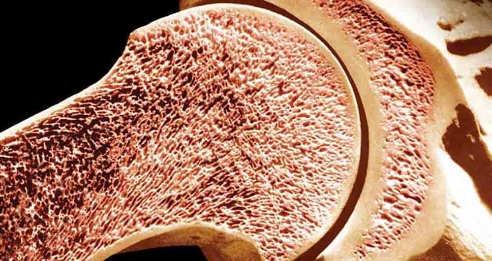 معجزه پلیمرهای شبه اسفنج در درمان آسیب های نخاعی