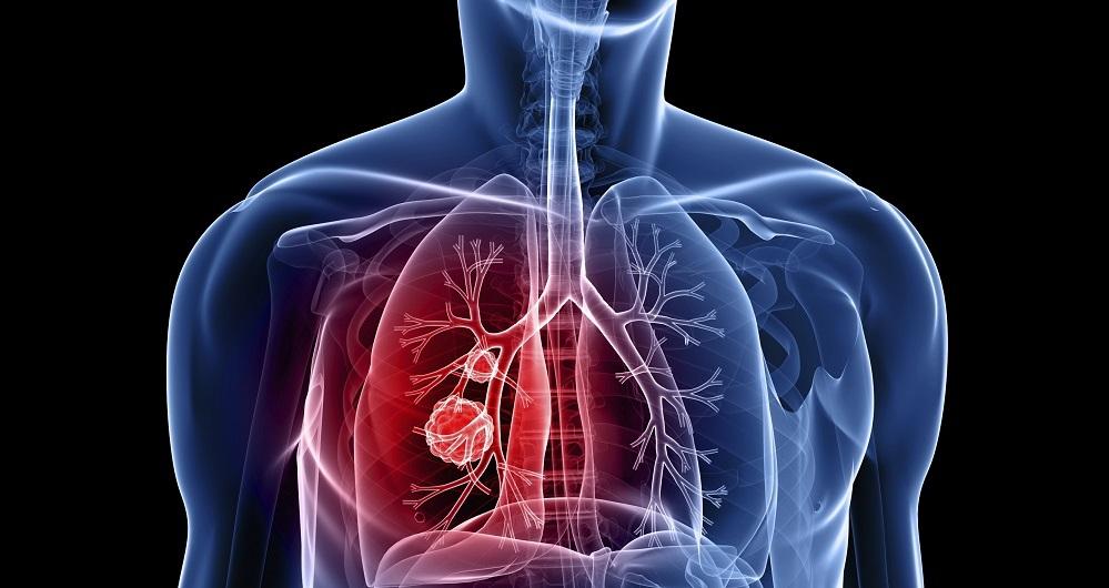 محققان روش جدیدی را در درمان سرطان کشف کرده اند