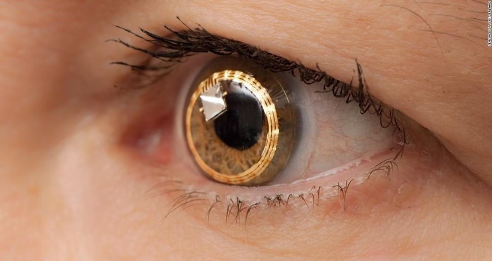 ایمپلنت، شبکیه بینایی را به افراد نابینا باز میگرداند