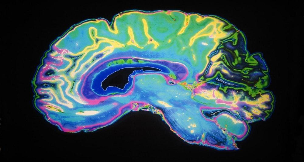 سلول های عصبی مغز