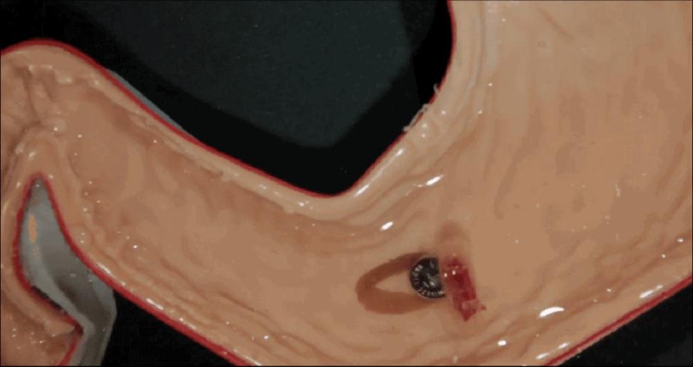 جراحی داخلی معده انسان به کمک یک ربات جراح کوچک