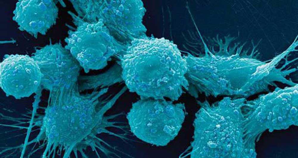 درمان هر نوع سرطان با واکسن جهانی جدید