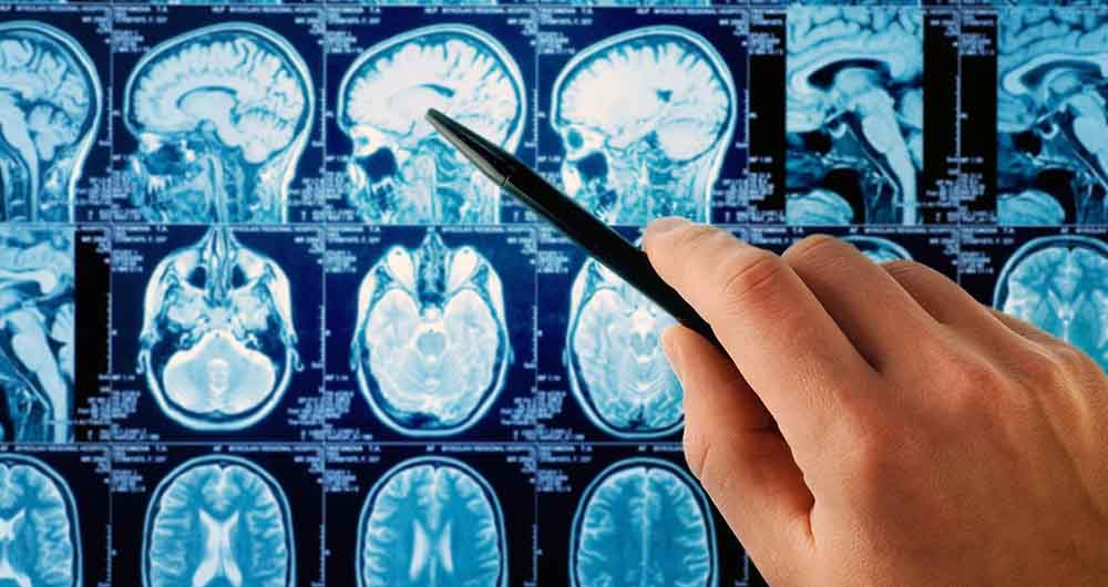 محاسبه دقیق میزان پیشرفت سرطان ممکن شد
