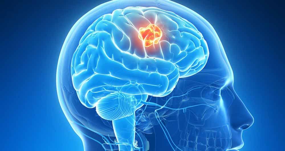 ماده شفابخش جدیدی برای درمان تومور مغزی کشف شد