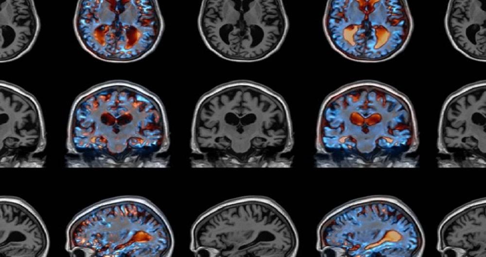 موفقیت بزرگ در درمان آلزایمر و پارکینسون