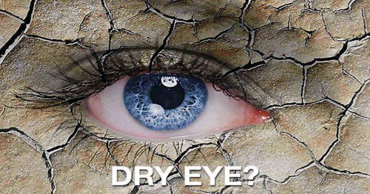 علت خشکی چشم