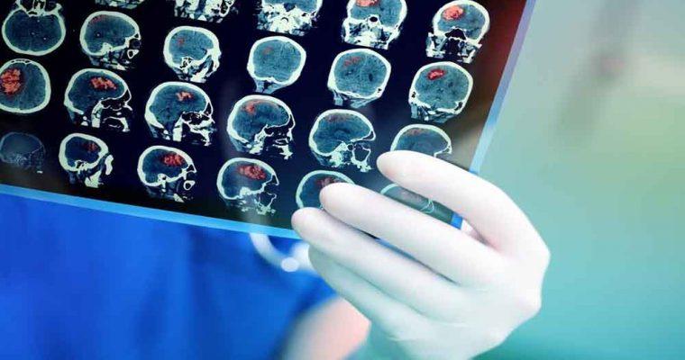 اسکن مغزی دروغ