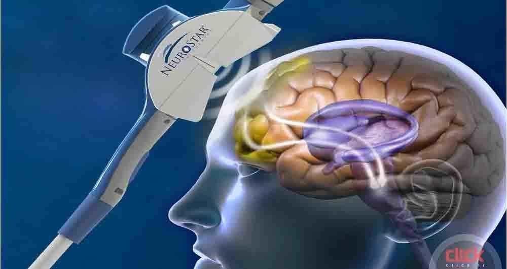 brain-crop1