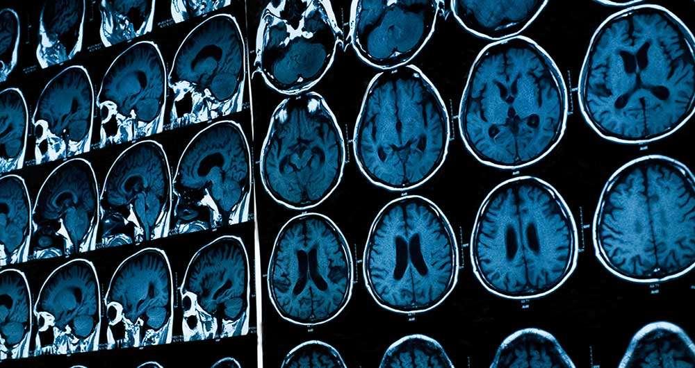 تصویر MRI مغز