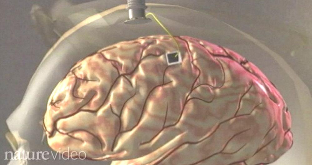 ساخت تراشه کاشتنی در مغز