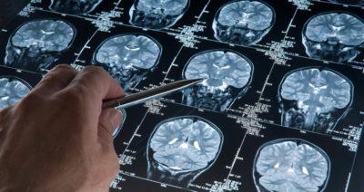 نگاهی به نقش فناوری در درمان بیماری پارکینسون