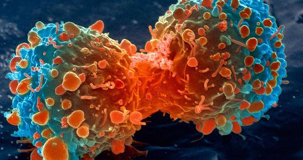 نخستین روش مبارزه با سرطان تایید شد