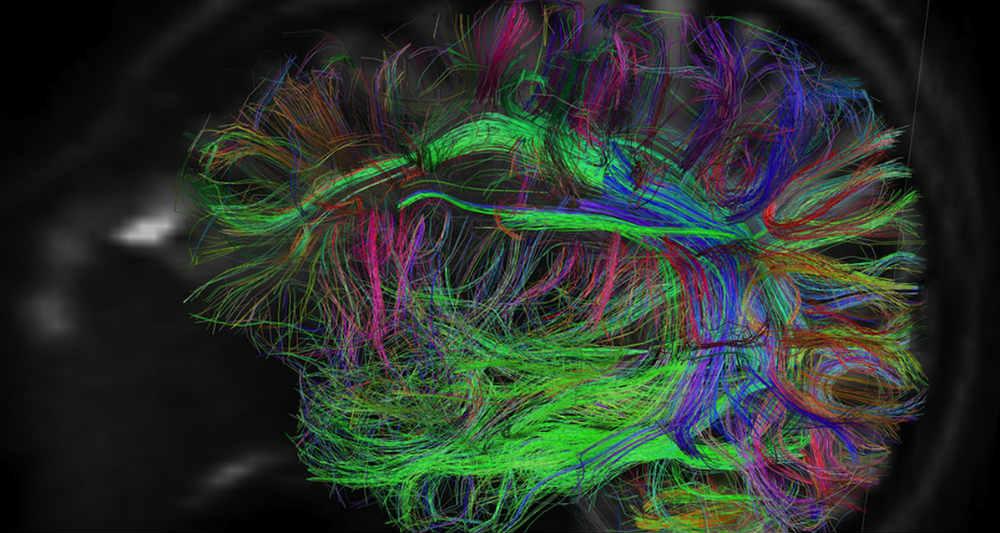 تاثیر رنگ ها بر مغز