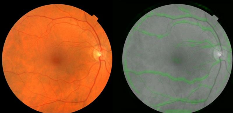 هوش مصنوعی جدید گوگل از طریق اسکن چشم، سکته قلبی را پیش بینی می کند!