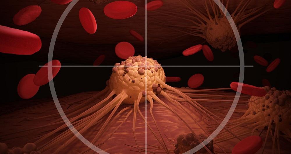 واکسن سرطان