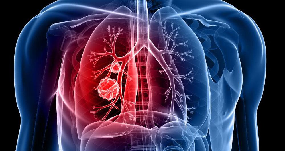 تشخیص سریع سرطان ریه با استفاده از هوش مصنوعی