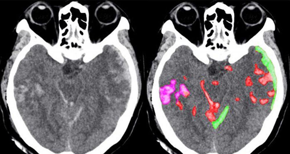 تشخیص سریع خونریزی مغزی به کمک هوش مصنوعی