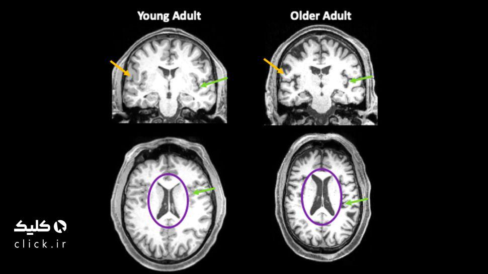 تغییرات مغز بر اثر کرونا