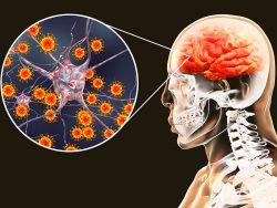 آسیب مغزی ناشی از کرونا